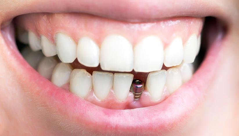 Установка зубных имплантов в Лобне по хорошим ценам - стоматология Семья