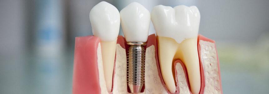 Имплант Osstem в Лобне в стоматологии Семья